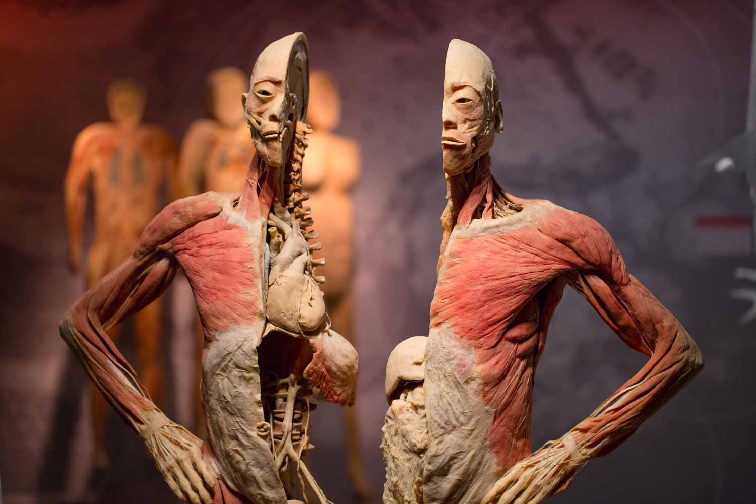 Real Bodies Hunger Exhibit at Bally's